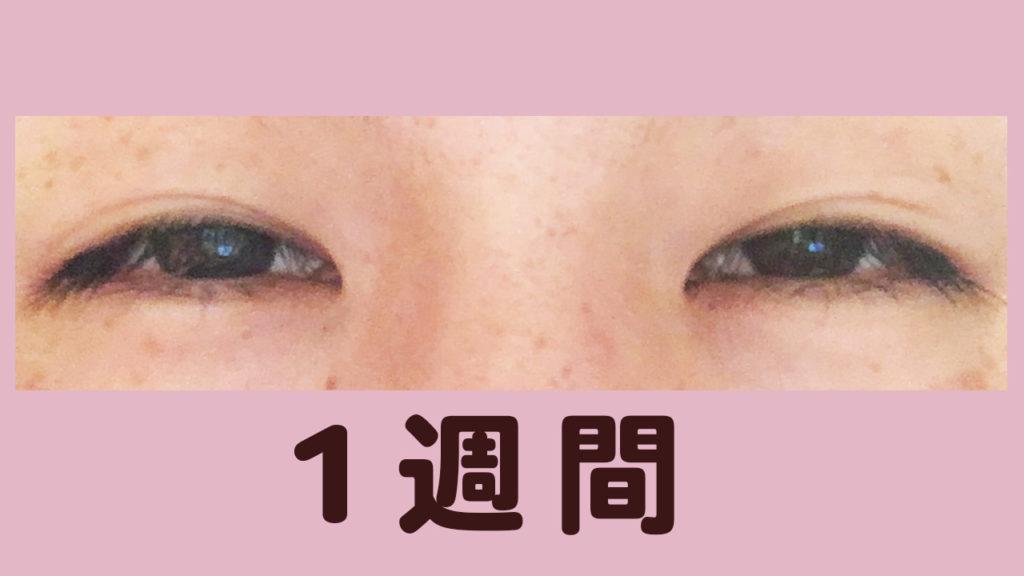 瞼美容液1週間-02