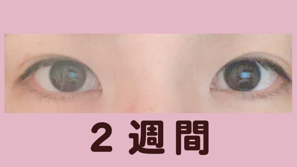 瞼美容液2週間目