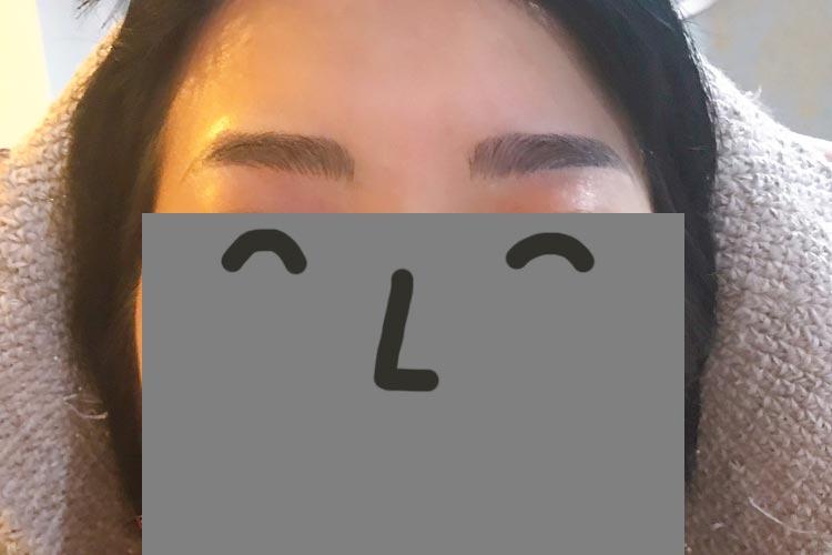 眉毛アートメイクアフター